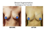 autologous fat transfer surgery in india