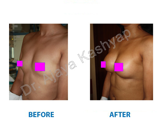 breast augmentation clinic in india