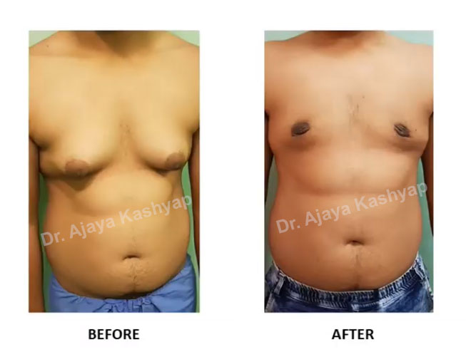 gynecomastia surgeon in india